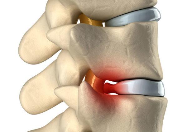 Лечение грыжи позвоночника у спортсменов